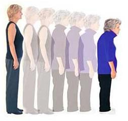 osteoporosis y degeneracion